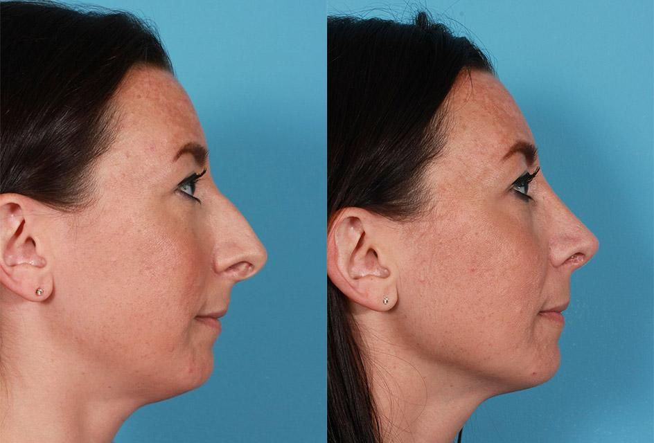 Park Art|My WordPress Blog_Rhinoplasty Before And After Male India
