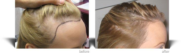 Park Art My WordPress Blog_Hair Transplant Success Rate Turkey