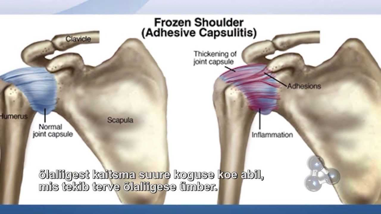 Park Art|My WordPress Blog_What Should You Not Do With A Frozen Shoulder
