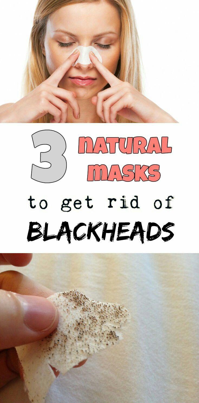 Park Art|My WordPress Blog_How To Remove Blackheads On Inner Thighs