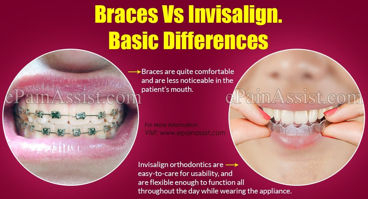 Park Art|My WordPress Blog_Clear Braces Vs Invisalign Which Is Faster