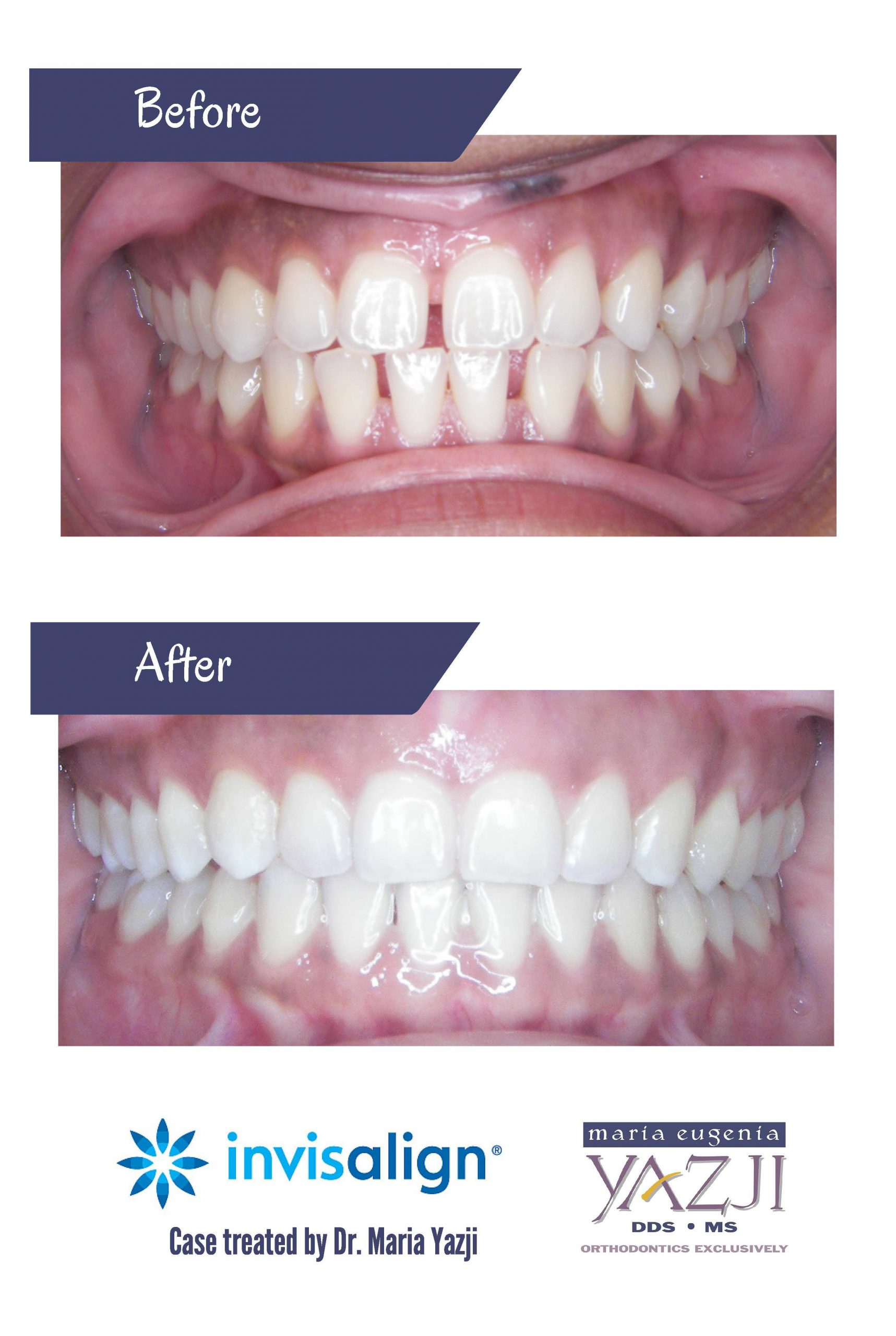 Park Art|My WordPress Blog_How To Close A Gap In Your Teeth At Home In Hindi