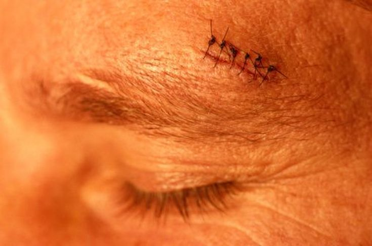 Park Art|My WordPress Blog_Do Urgent Care Do Stitches