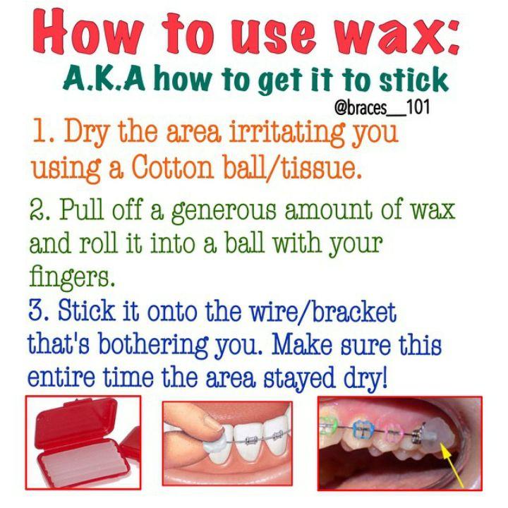Park Art|My WordPress Blog_How To Apply Wax To Your Braces