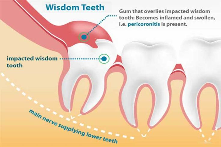 Park Art|My WordPress Blog_How To Prepare For Impacted Wisdom Teeth Removal