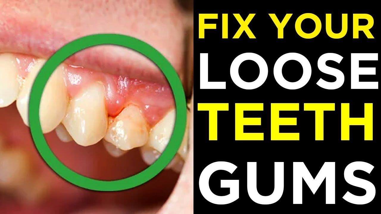 Park Art|My WordPress Blog_How To Fix A Loose Tooth Naturally
