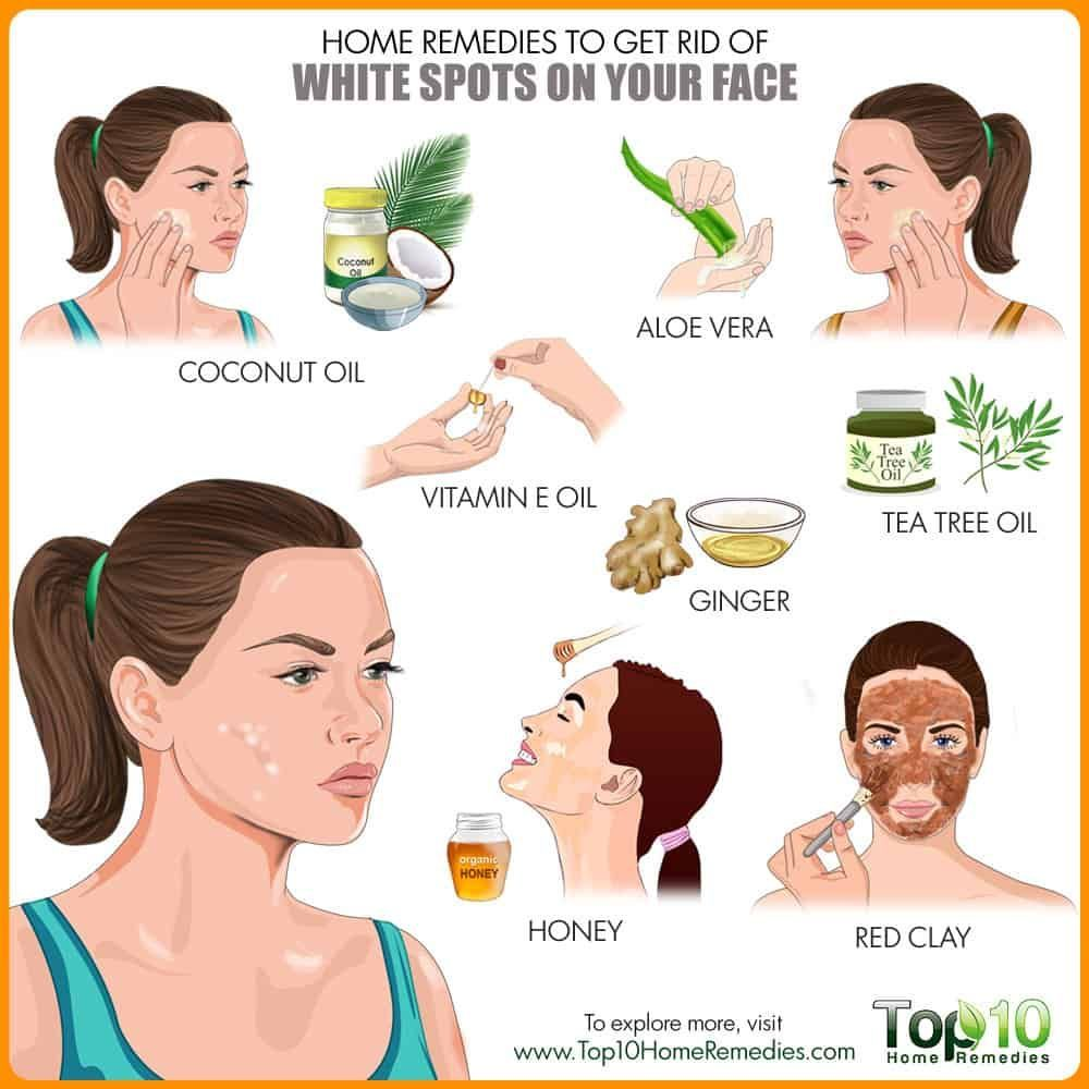 Park Art|My WordPress Blog_How To Get Rid Of White Spots On Teeth After Whitening