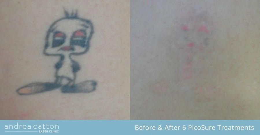 Park Art|My WordPress Blog_Picosure Laser Tattoo Removal Uk