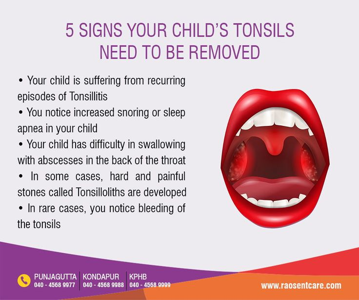 Park Art My WordPress Blog_How To Know If I Should Get My Tonsils Removed