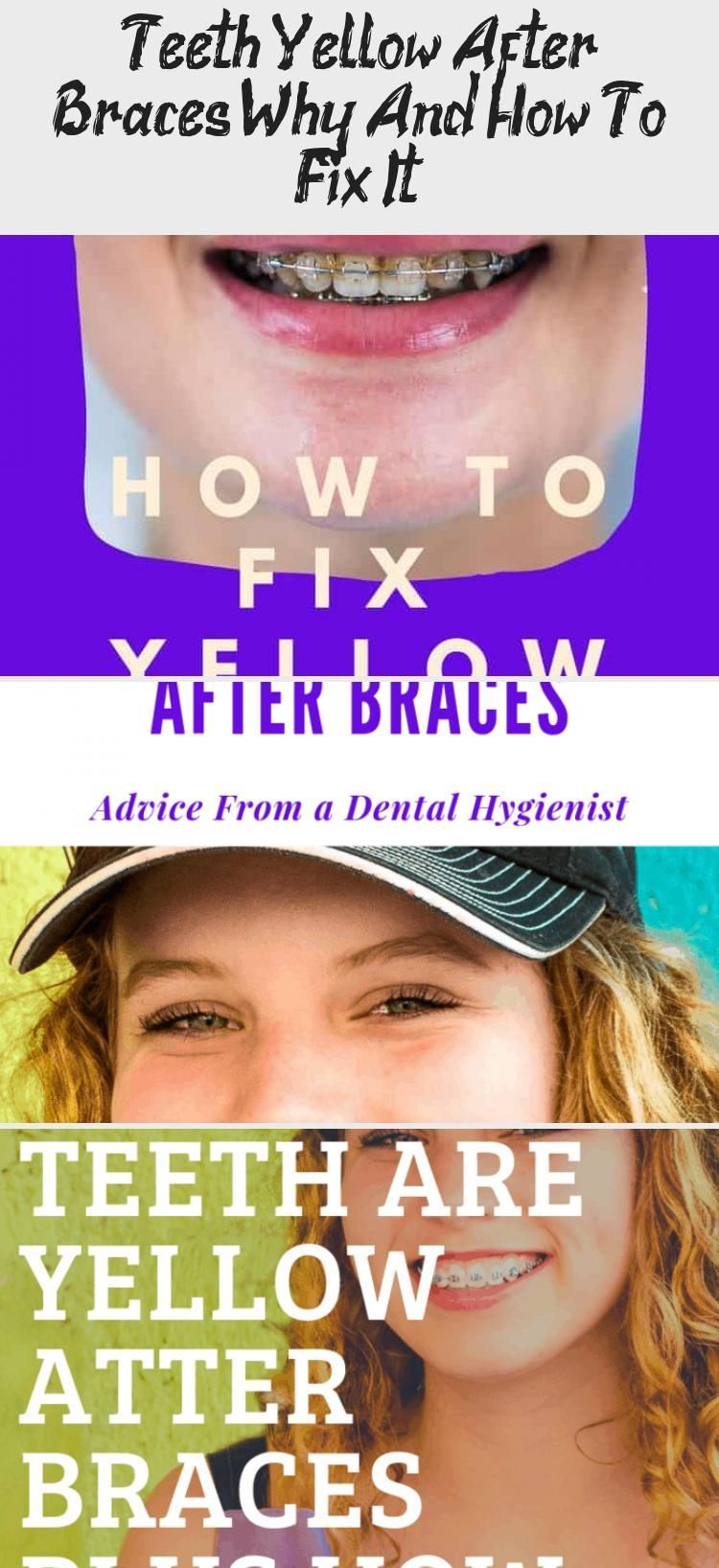 Park Art|My WordPress Blog_How Do You Get Rid Of Braces Stains