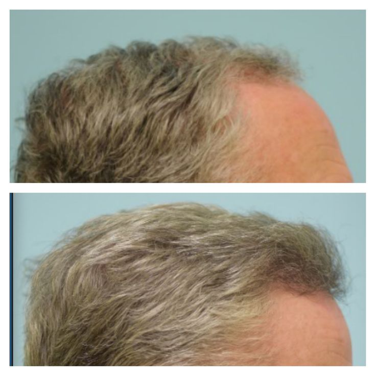 Park Art My WordPress Blog_Fue Hair Transplant Before And After Photos