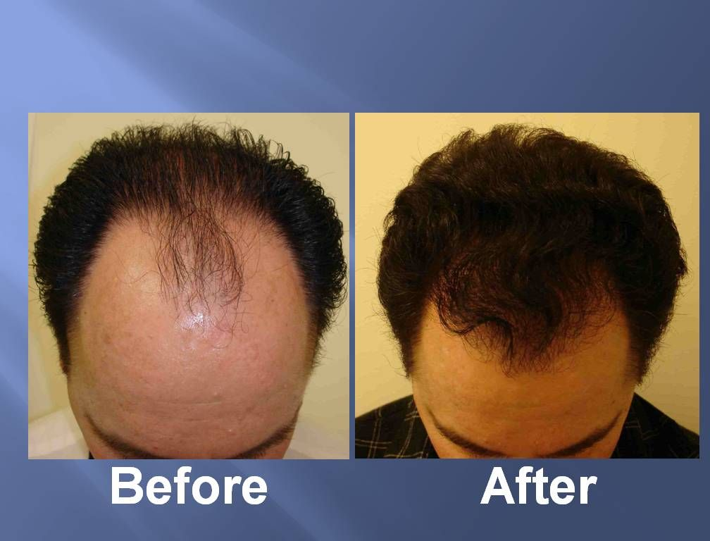 Park Art My WordPress Blog_Stem Cell Hair Restoration Before And After