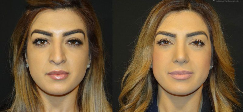 Park Art|My WordPress Blog_Wide Nose Job Before And After Female