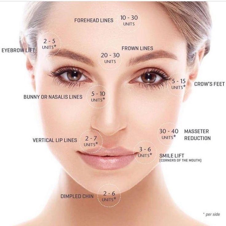 Park Art My WordPress Blog_How Many Units Of Botox Do I Need For My Forehead