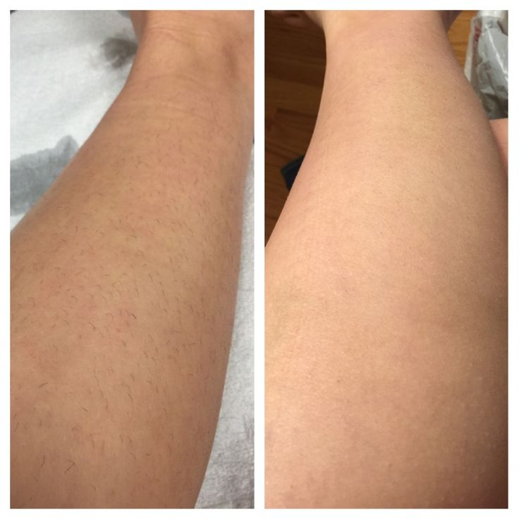 Park Art|My WordPress Blog_Laser Hair Removal Legs Before And After
