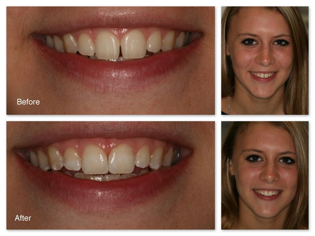 Park Art|My WordPress Blog_How To Fix A Crooked Smile Without Surgery