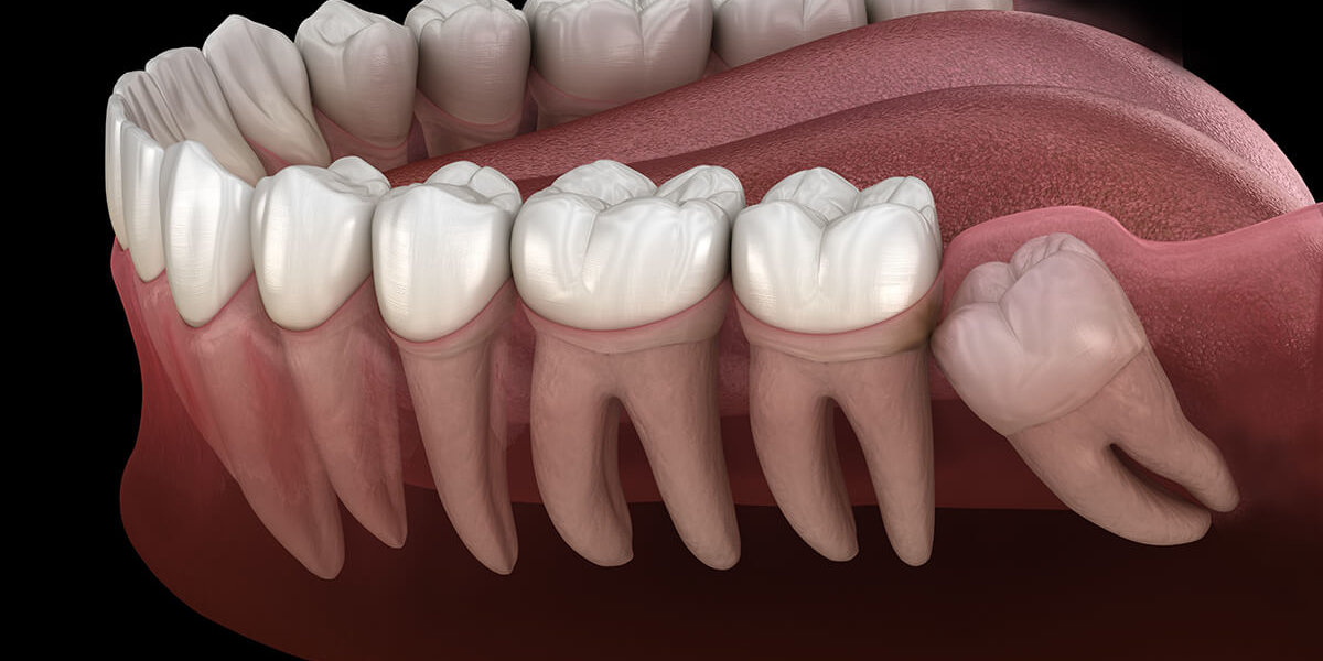 Park Art|My WordPress Blog_How Long Does It Take For Teeth To Shift After Wisdom Teeth Removal